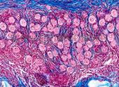 How to test for detection of ovarian follicles? or urine? accurate? how many times you want to measure?